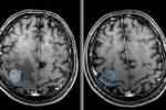 travmyi-mozga